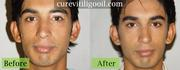 Cure Vitiligo